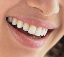 Dental Bell