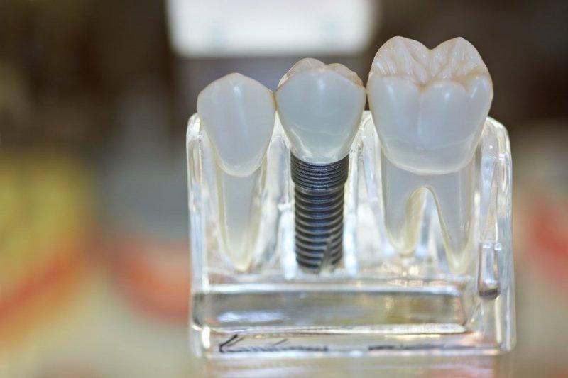 Clínica Dental San Ildefonso