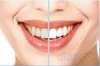 BLANQUEAMIENTO DOMICILIARIO NOCTURNO.   Consiga sus dientes blancos en una semana de tratamiento, cómodamente en su propia casa.     Incluye la confección de férulas de impregnación y un estuche de producto blanqueante de primera calidad.