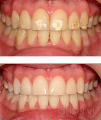 Blanqueamiento dental sujeto a valoracion odontologica por parte del facultativo dentista.