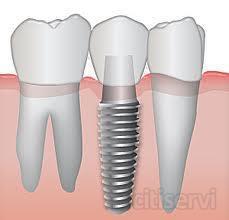 Implante dental de titanio biocompatible de alta calidad por solo 390€. En Dental Beauty nos hemos abrochado el cinturon para poder llegar a toda la poblacion sin sacrificar ni un apice la calidad de materiales, atencion y servicio. Pida una cita  gratu