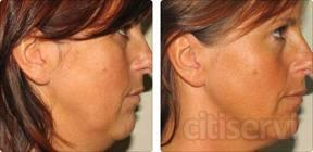 disfruta de 1 sesion de radiofrecuencia facial al 50% de descuento por solo 35€ en lugar de 70€,y recuperaras una piel mas firme y tensa,notaras la diferencia