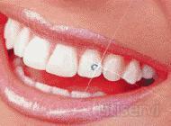 Piercing dental, no daña el esmalte, indoloro.