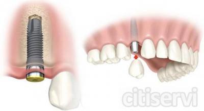 15% de descuento en implante  + corona (todo incluido)1041 precio final.