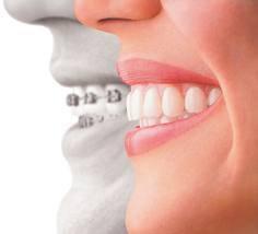 Dental-ka