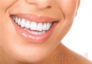 ¿Quieres tener una sonrisa blanca y radiante? No lo pienses mas