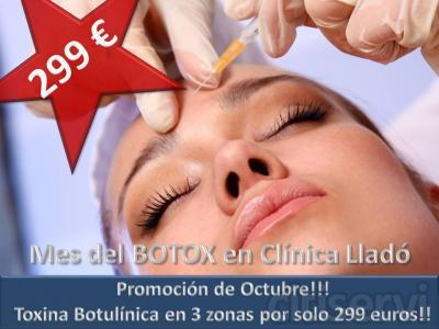 Durante todo el mes de Octubre cancela solo 299 euros por tu tratamiento con Toxina Botulinica en 3 zonas!! El precio sin promoción es de 499 euros!