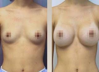 El aumento mamario, técnicamente conocido como mamoplastia de aumento, es un procedimiento quirúrgico para mejorar el tamaño y la forma del pecho de la mujer en las siguientes situaciones: para mejorar la silueta de la mujer que piensa que sus pechos s