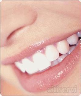 Las primeras visitas siempre seran con cita previa.  La limpieza bucal no se realizara el mismo dia de la revision para poder programar el tiempo necesario para la misma. Para ser cliente Dental Beauty solo hara falta la realizacion de un tratamiento de